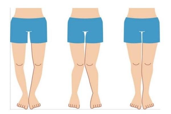 Tình trạng của chân bị vòng kiềng